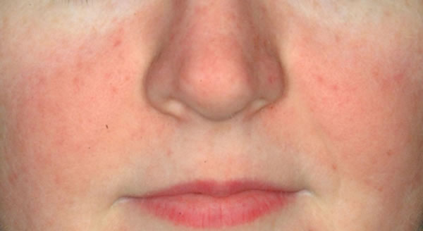 After-reducir rosacea